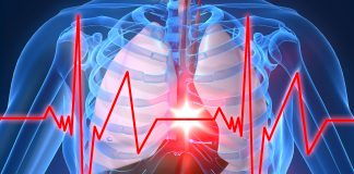 حمله-سکته قلبی