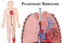 بیماری-آمبولی-ریوی
