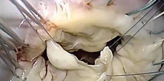 پرولاپس دریچه میترال