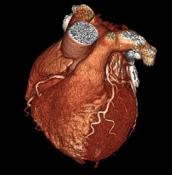 سی تی آنژیوگرافی قلب