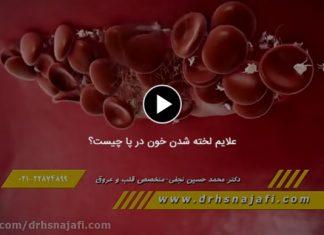 لخته شدن خون در پا