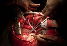 عمل جراحی قلب باز
