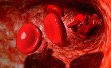 علت پایین بودن پلاکت خون