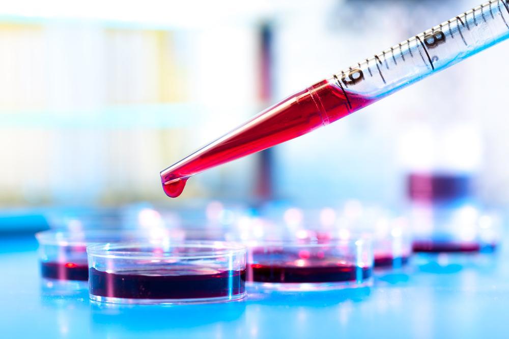 تفسیر آزمایش خون PT