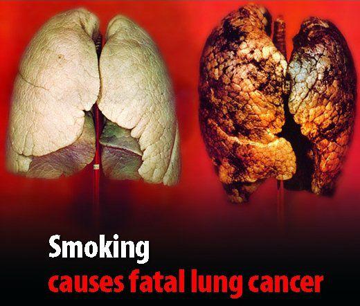سرطان-ریه-سیگار