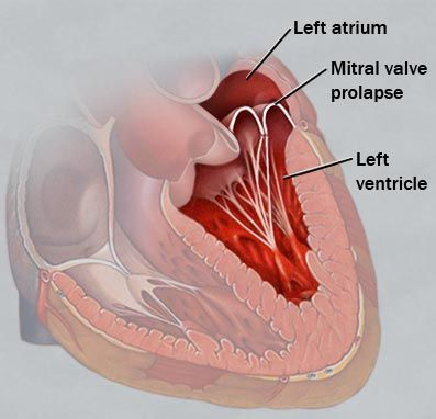 دریچه-میترال-قلب