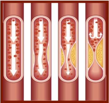 atherosclerosis HiRes - ASSET VERSION