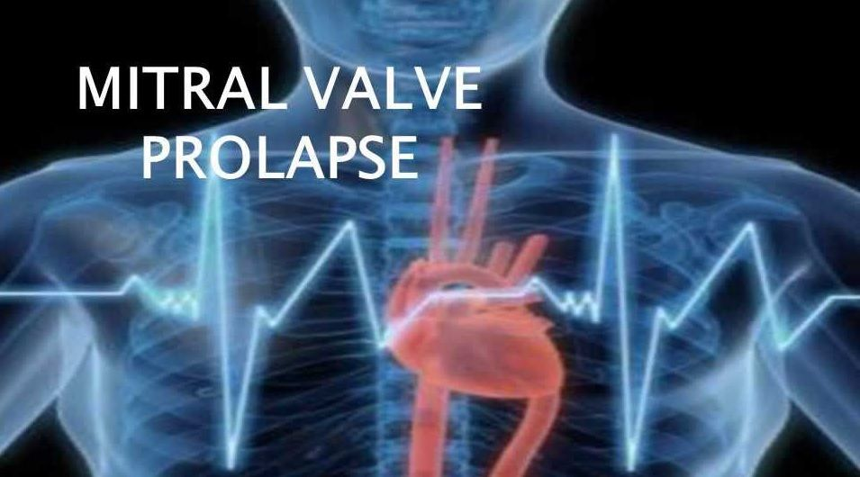 پرولاپس دریچه میترال قلب
