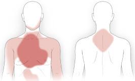 درد ناشی از حمله ی قلبی
