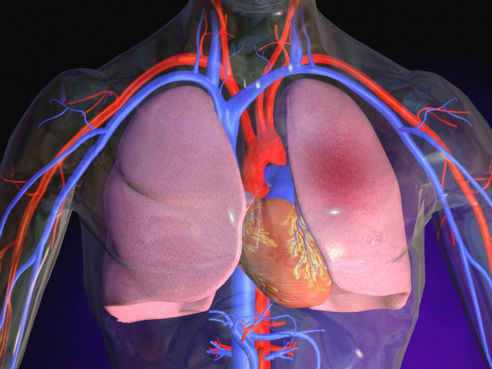 بیماری-آمبولی ریوی