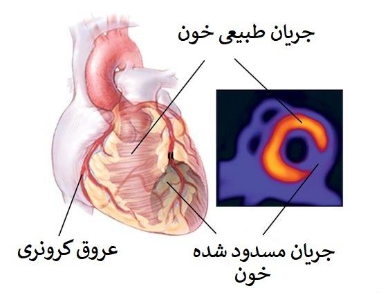 مرحله دوم اسکن قلب