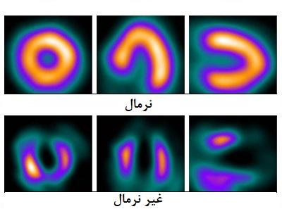عکس هسته ای قلب