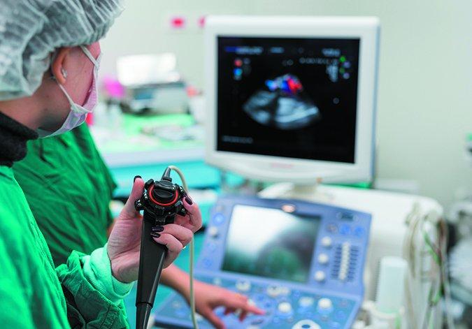 انواع اکوکاردیوگرافی