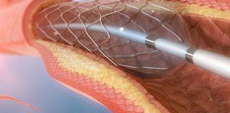 کاربرد آنژیوگرافی قلب