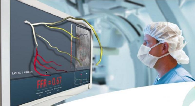 متخصص قلب آنژیوگرافی