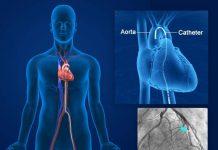 آنژیوگرافی قلب-آنژیو