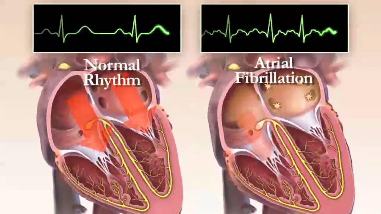 بیماری قلبی آریتمی قلبی