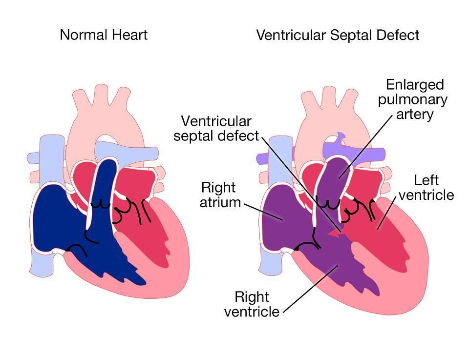 بیماری قلبی نقص مادرزادی قلب