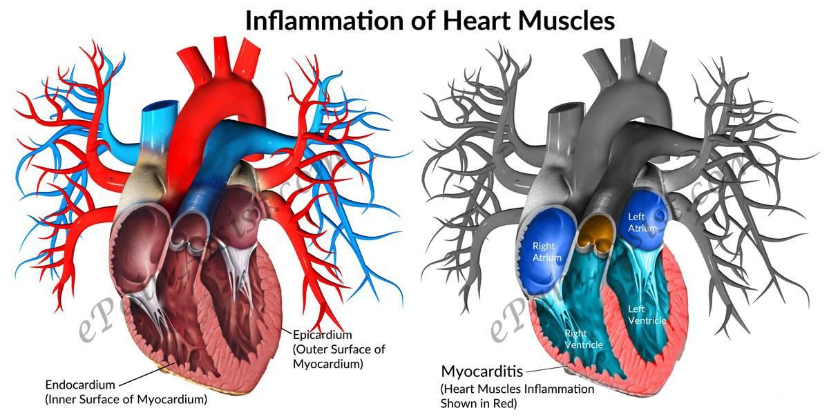 بیماری قلبی پریکاردیت
