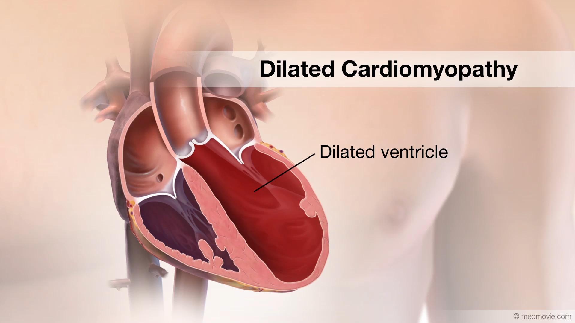 بیماری قلبی کاردیومیوپاتی