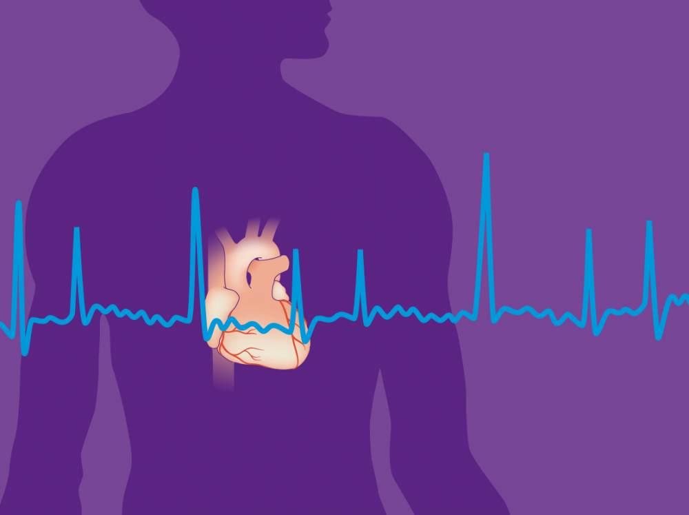 آیـا ورزش باعث فیبریلاسیون دهلیزی مـی شود فیبریلاسیون دهلیزی چیست؟ - محمد حسین  متخصص قلب و   فوق ... mimplus.ir
