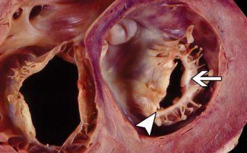 تشخیص تنگی دریچه میترال