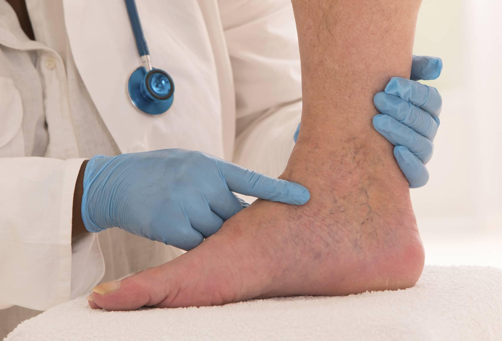 لخته خون در پا و ورم پا