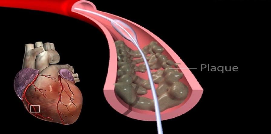 عوارض بالون زدن قلب
