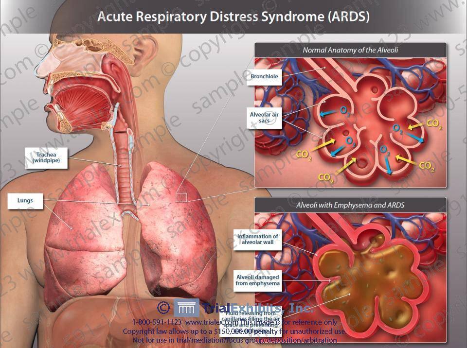 acute-respiratory-distress-syndrome-ards-5