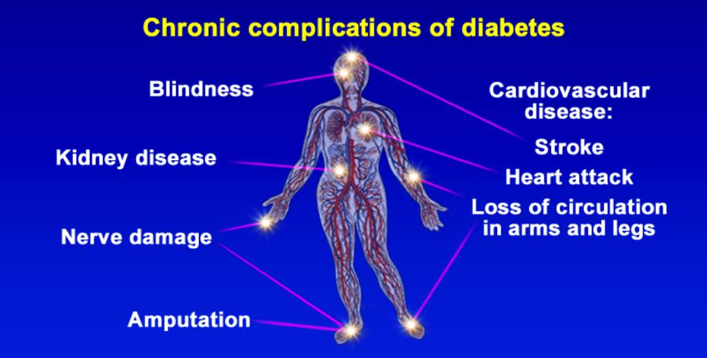 chronic-complications-of-diabetes-1024x519