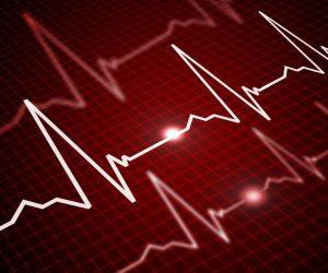اختلال ضربان قلب