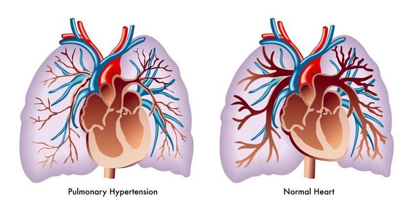 فشار خون ریوی