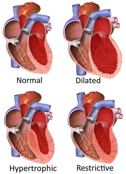 tipet_e_kardiomiopative