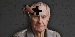 رابطه دیابت نوع ۳ و آلزایمر