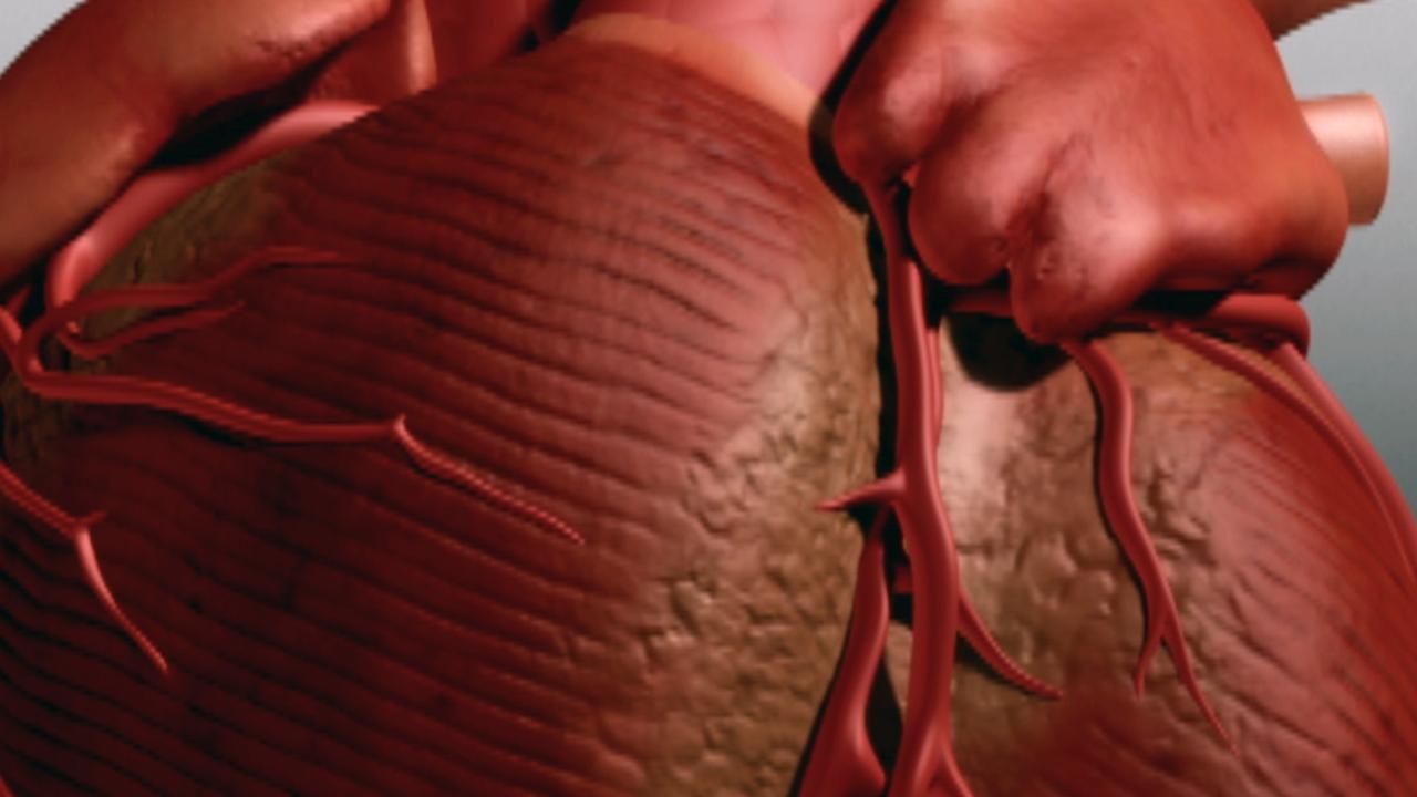 درد قفسه سینه یا آنژین