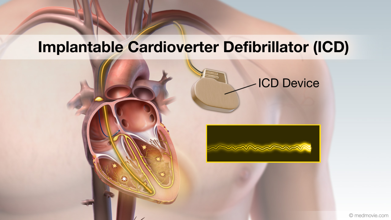 دفیبریلاتور قلبی