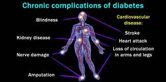 تمام عوارض دیابت بر روی اعضای بدن