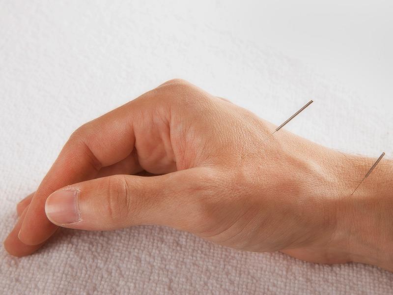 طب سوزنی در درمان سردی انگشتان دست و پا