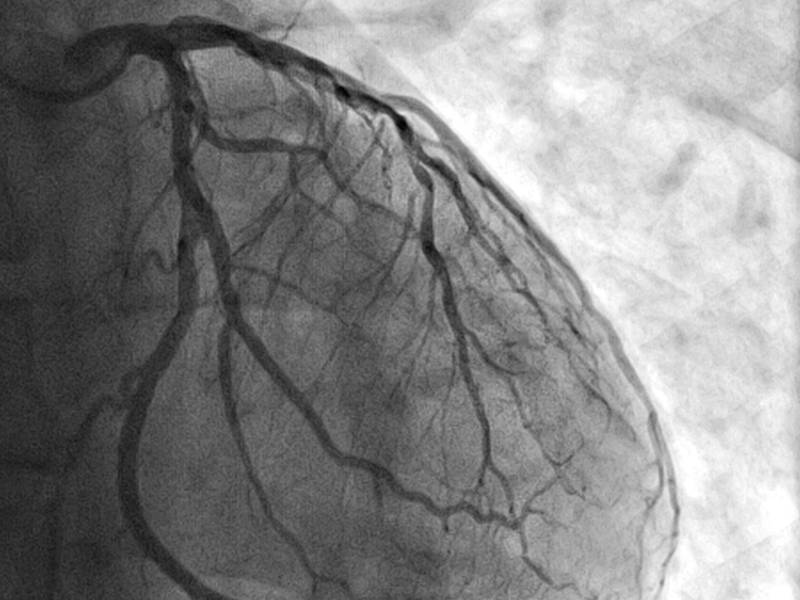 تعداد رگ های متصل به قلب