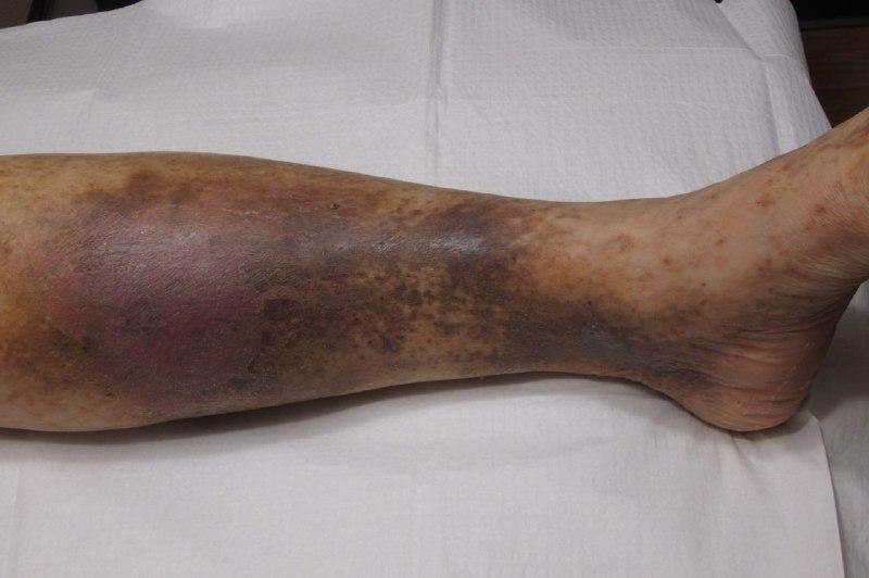 نارسایی وریدی پا، تغییرات پوستی ناشی از واریس