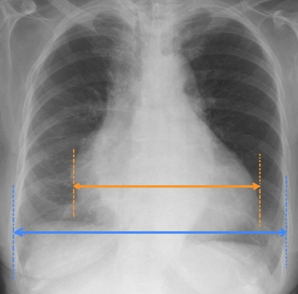 رادیوگرافی قلب