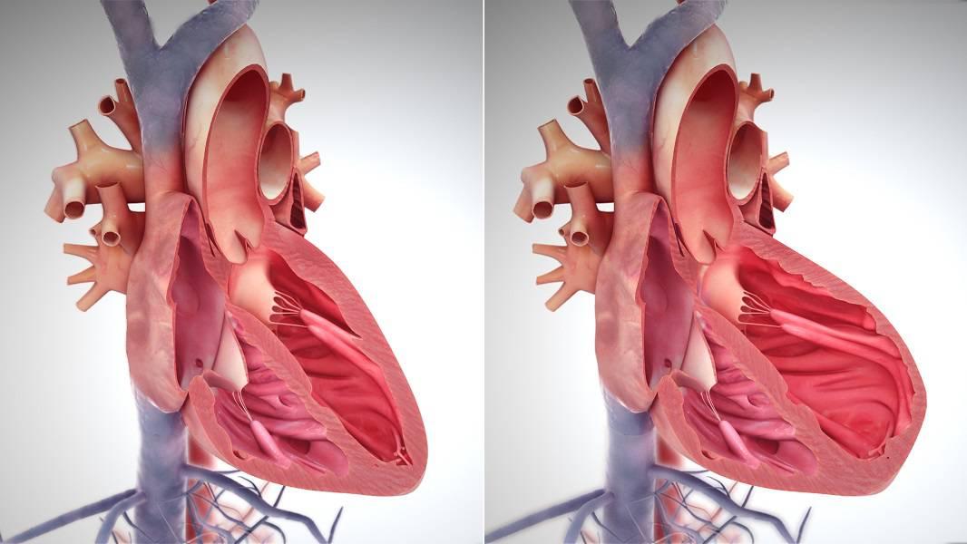بیماری های قلبی در بارداری