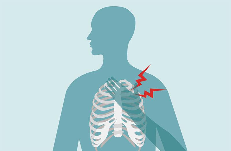 مشکلات استخوانی در سوزش یک نقطه در سینه