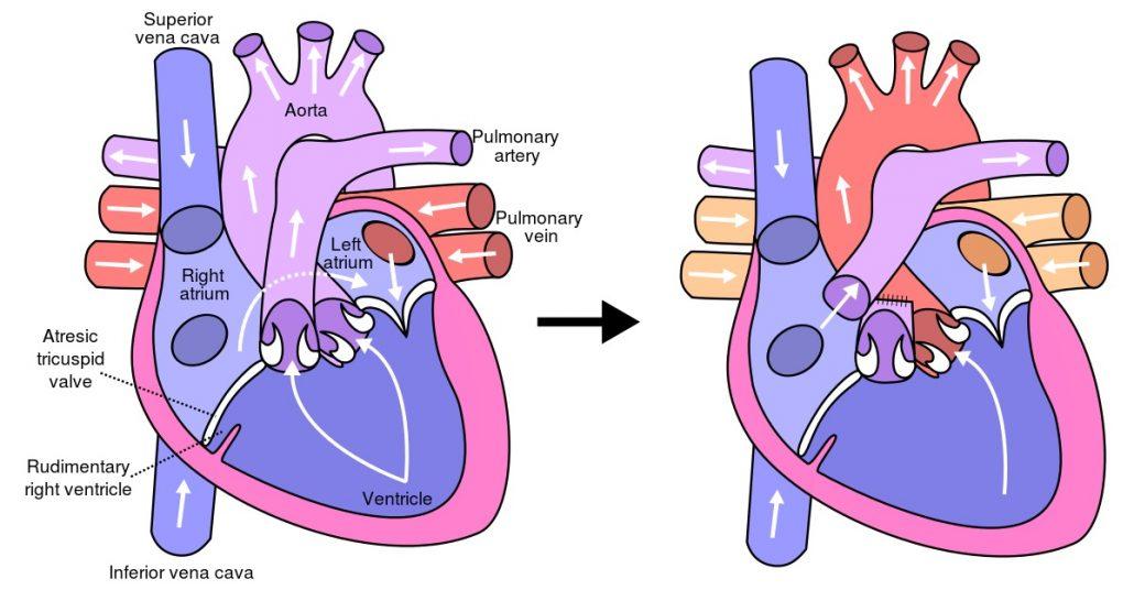 روش جراحی فونتان برای درمان آترزی تریسکوپید قلب