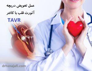 عمل تعویض دریچه آئورت قلب با کاتتر