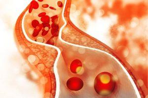 کلسترول بالا چیست و چگونه آن را درمان کنیم؟