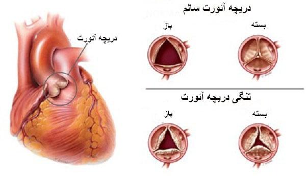 بیماری دریچه قلب در اثر چه عواملی ایجاد می شود
