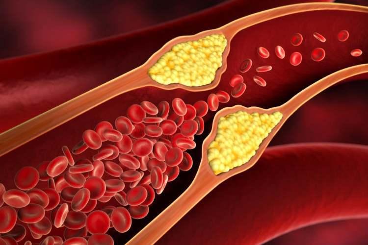 گرفتگی رگ قلب و درمان تصلب شرایین