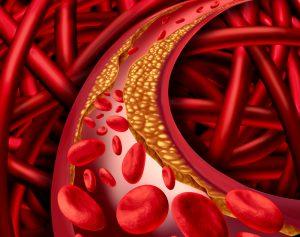 اکتازی عروق کرونر - گشادی رگهای تغذیهکننده قلب