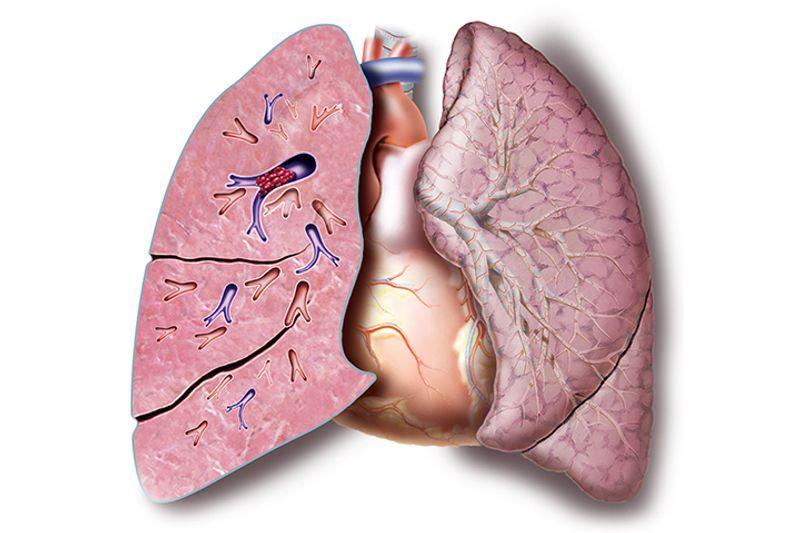 جلوگیری از لخته شدن خون در ریه